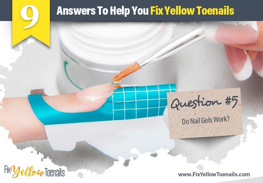 how to prevent yellow toenails