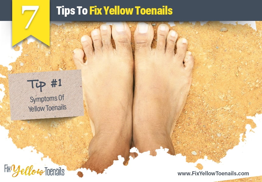 Fix Yellow Toenails | 7 Tips To Fix Yellow Toenails